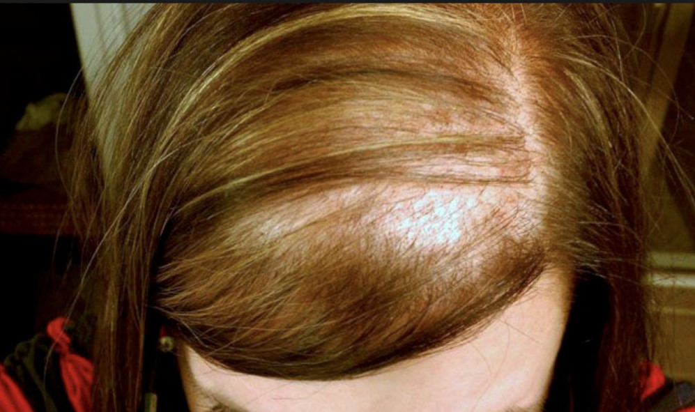 Why Women Lose Hair? Can It Be Helped?