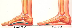Normal and Flat Foot-Foot Care in the Elderly-Tips for Healthy and Painless Feet