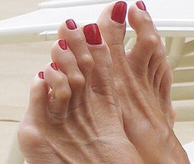 Hammertoes-Foot Care in the Elderly-Tips for Healthy and Painless Feet